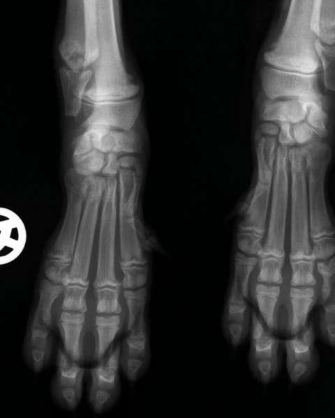 HOD Röntgenbild